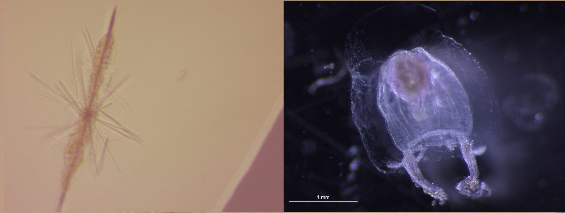 Two microscope images side by side. On the left is a long, thin, spiny organism. The image on the right contains an opaque rounded organism with a pair of dangling tentacles. A scale bar reading one millimeter is placed next to the organism and is approximately half its total width